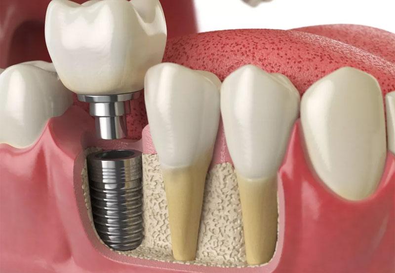 """Картинки по запросу """"Имплантация зубов"""""""
