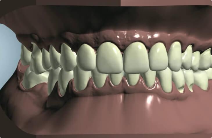 Лечение искривления зубов | https://complex-dent.com.ua/