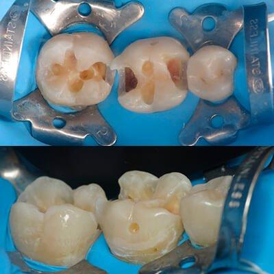 Результаты работ стоматологической клиники Complex Dent — фото 44