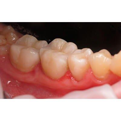 Результаты работ стоматологической клиники Complex Dent — фото 45
