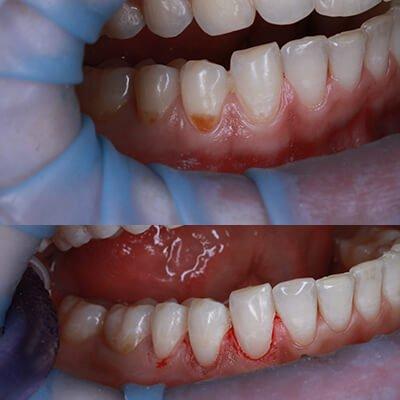 Результаты работ стоматологической клиники Complex Dent — фото 46