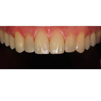 Результаты работ стоматологической клиники Complex Dent — фото 42