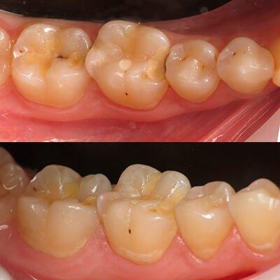 Результаты работ стоматологической клиники Complex Dent — фото 43