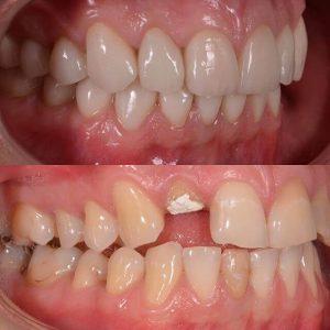 Сломался зуб — неприятный «сюрприз», но не более! - 3 | https://complex-dent.com.ua