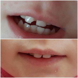 Сломался зуб — неприятный «сюрприз», но не более! - 5 | https://complex-dent.com.ua