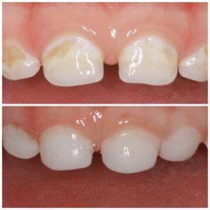 Фторирование зубов у детей - 1 | https://complex-dent.com.ua