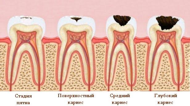 Лечение зубов - 2  https://complex-dent.com.ua