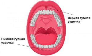 Пластика уздечки губы - 2 | https://complex-dent.com.ua