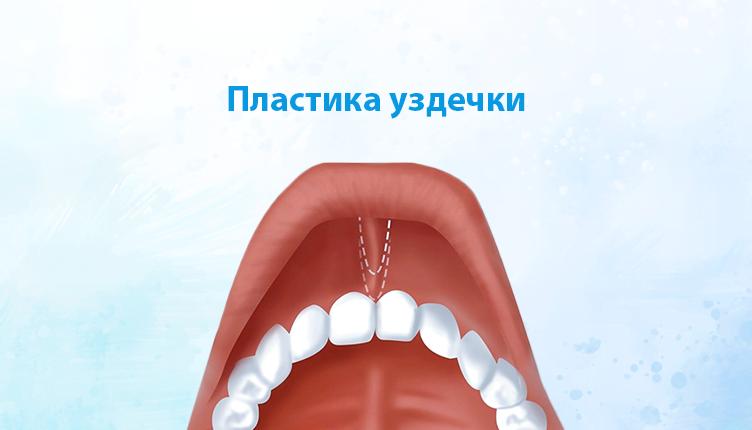Пластика уздечки губы | https://complex-dent.com.ua