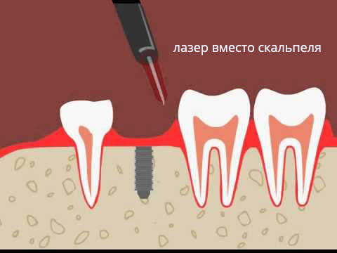 Лазерная имплантация зубов  - 1 | https://complex-dent.com.ua