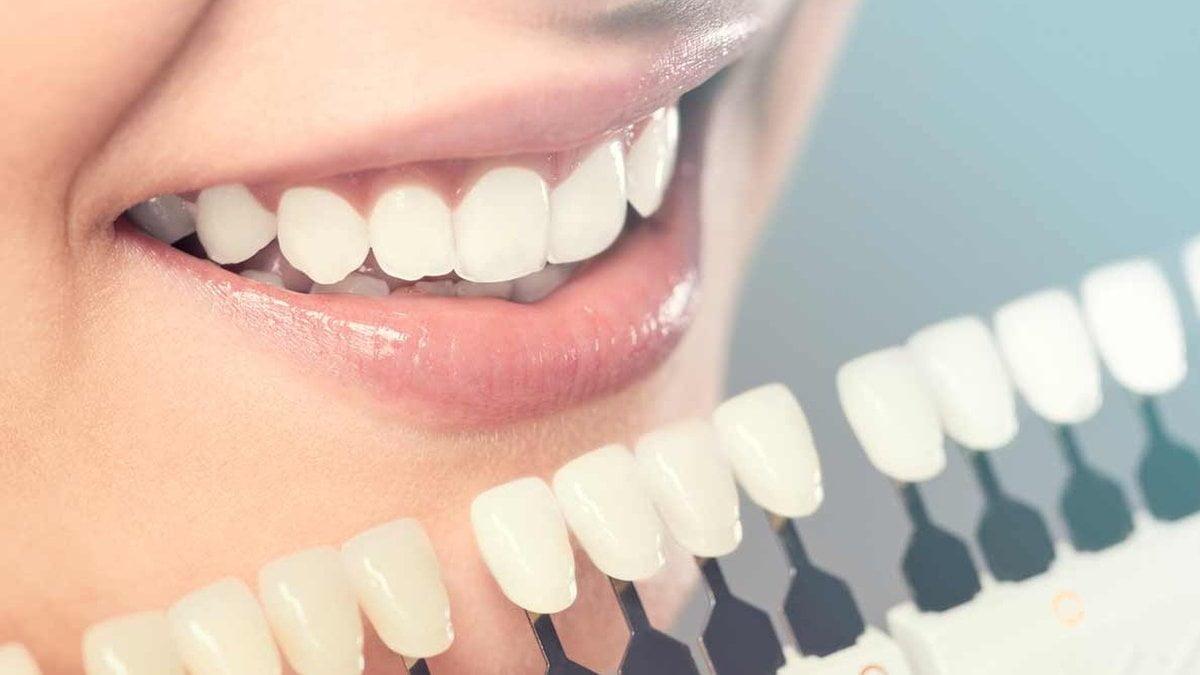 Лечение зубов - 4   https://complex-dent.com.ua