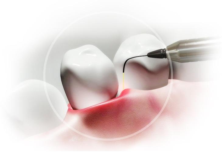 Лазерная имплантация зубов  - 2 | https://complex-dent.com.ua
