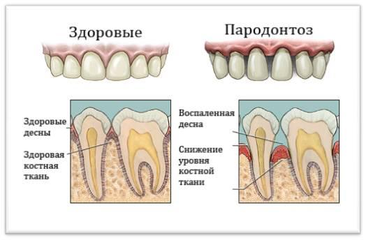 Лечение пародонтоза - 2 | https://complex-dent.com.ua
