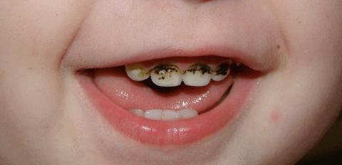 Фторирование зубов у детей - 3 | https://complex-dent.com.ua