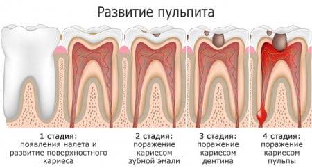 Лечение пульпита - 1 | https://complex-dent.com.ua