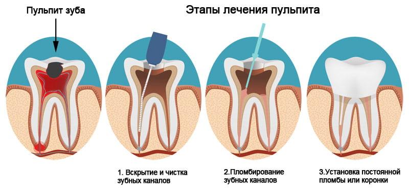 Лечение пульпита - 2 | https://complex-dent.com.ua