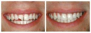 Наращивание зубов - 1 | https://complex-dent.com.ua
