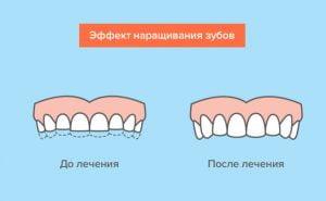 Наращивание зубов - 3 | https://complex-dent.com.ua