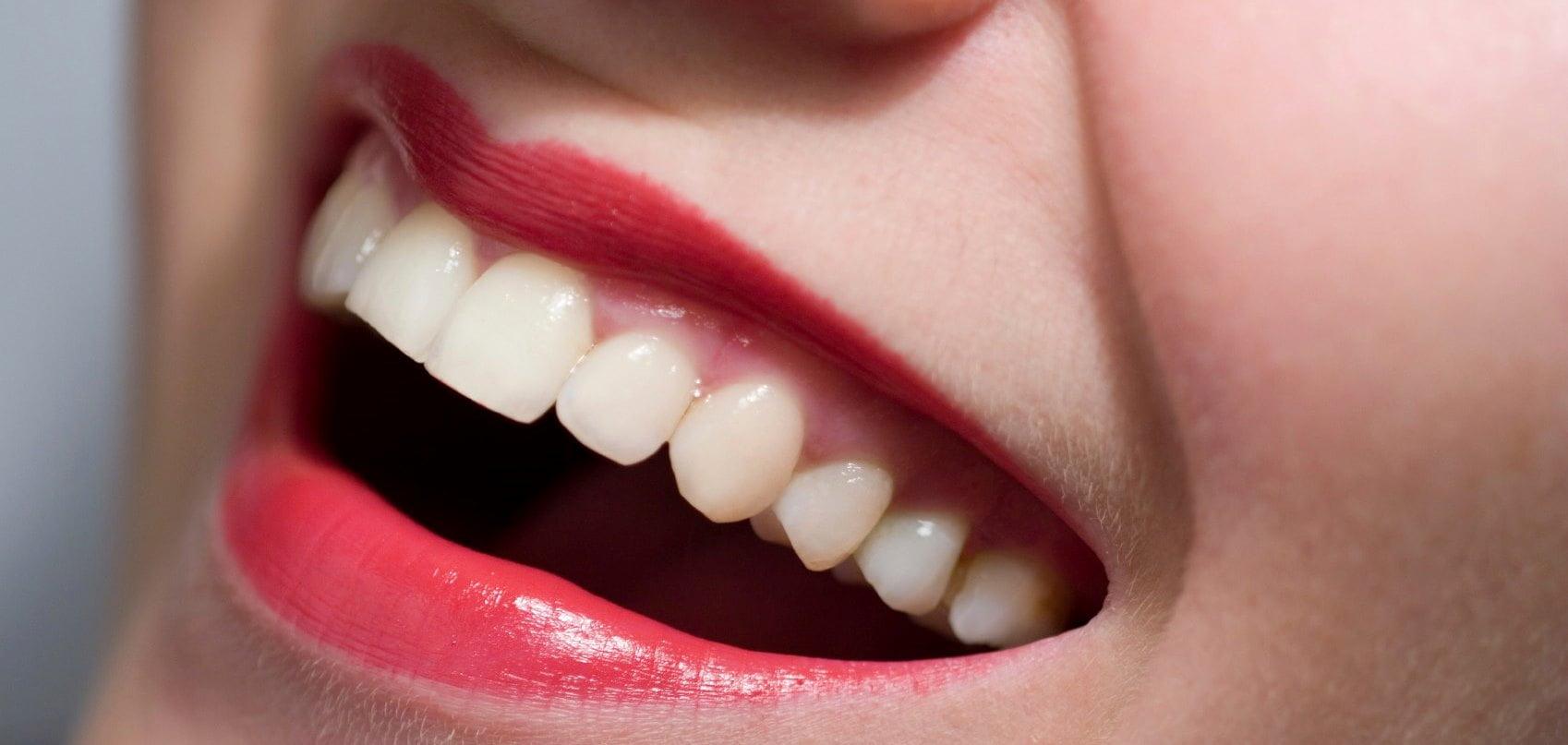 Наращивание зубов | https://complex-dent.com.ua