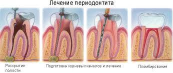 Лечение периодонтита - 3 | https://complex-dent.com.ua