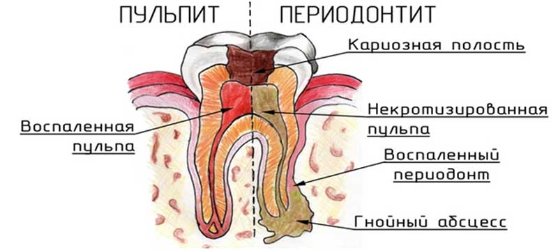 Лечение периодонтита - 2 | https://complex-dent.com.ua