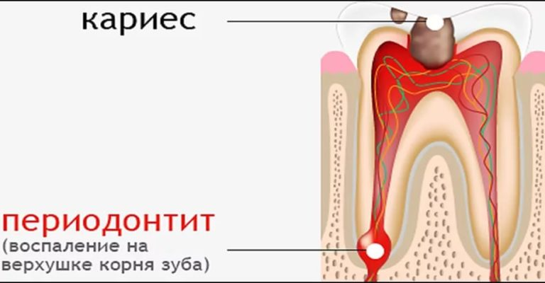 Лечение периодонтита - 1 | https://complex-dent.com.ua