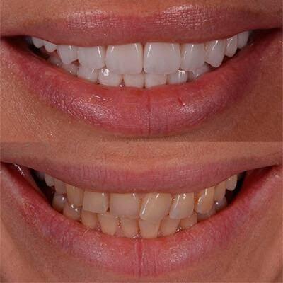 Как ставят виниры на зубы? - 2 | Complex Dent