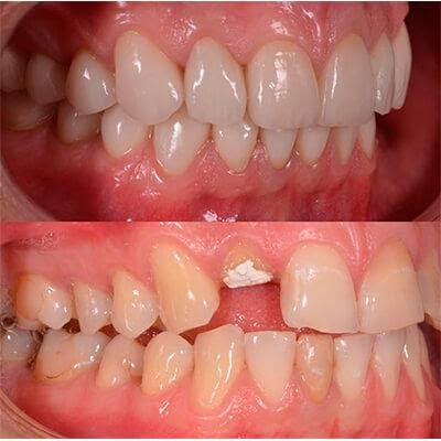 Как ставят виниры на зубы? - 3 | Complex Dent