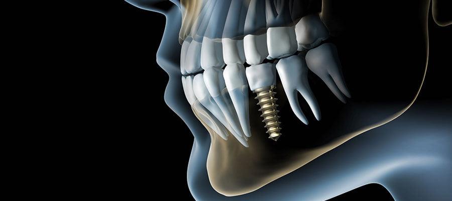 3d диагностика зубов   https://complex-dent.com.ua/ok
