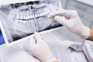 3d диагностика зубов - 1   https://complex-dent.com.ua/ok