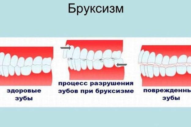Лечение бруксизма - 2   https://complex-dent.com.ua/
