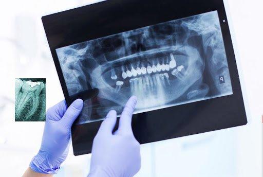 Диагностика зубов - 1 | https://complex-dent.com.ua/