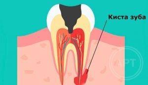 Диагностика кисты зуба - 1 | https://complex-dent.com.ua