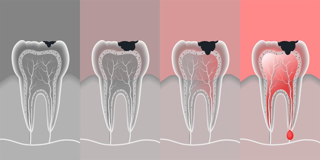 Диагностика кисты зуба | https://complex-dent.com.ua