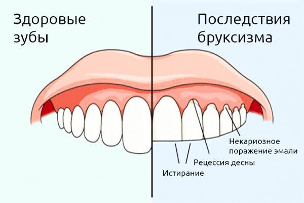 Лечение бруксизма - 1   https://complex-dent.com.ua/