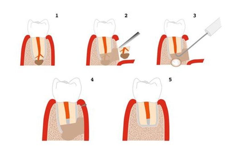 Резекция зуба - 2 | https://complex-dent.com.ua/