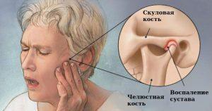 Лечение ВНЧС - 1   https://complex-dent.com.ua/