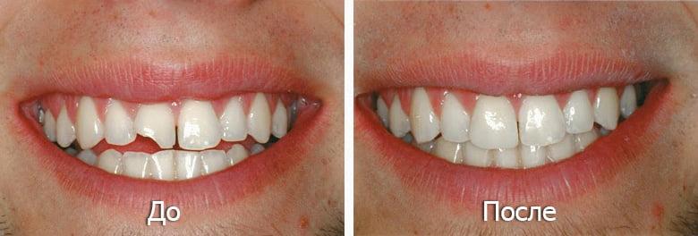 Пломбирование передних зубов - 2 | https://complex-dent.com.ua