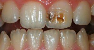 Диагностика некариозных поражений зубов - 1 | https://complex-dent.com.ua
