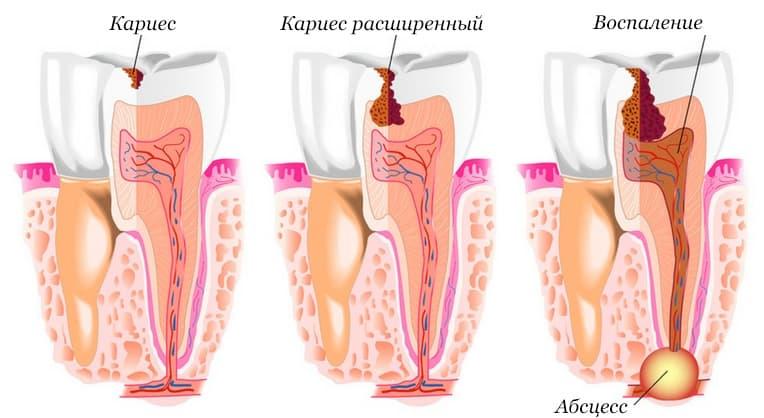 Диагностика кариеса зубов - 1 | https://complex-dent.com.ua