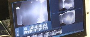 Диагностика кариеса зубов - 2 | https://complex-dent.com.ua
