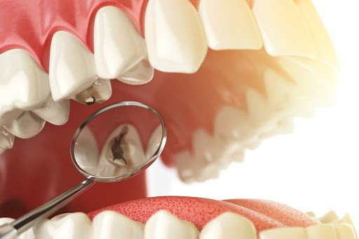 Диагностика кариеса зубов | https://complex-dent.com.ua