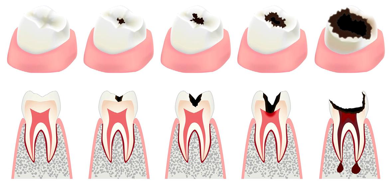 Диагностика некариозных поражений зубов | https://complex-dent.com.ua