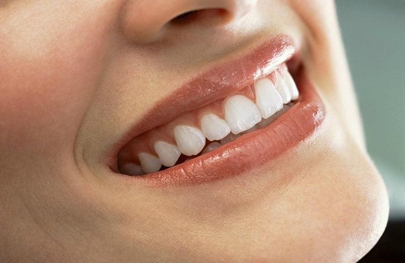 Пломбирование передних зубов | https://complex-dent.com.ua
