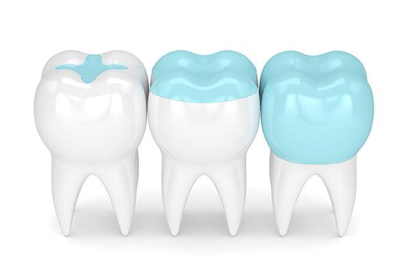Пломбирование зубов | https://complex-dent.com.ua