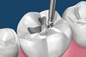 Пломбирование жевательных зубов - 1 | https://complex-dent.com.ua