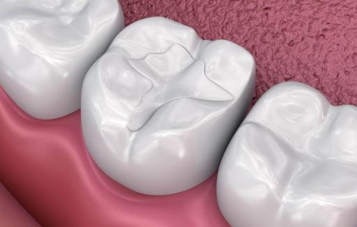 Пломбирование жевательных зубов | https://complex-dent.com.ua