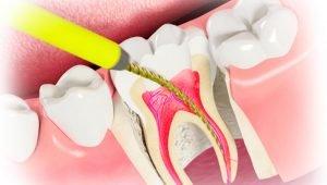 Что происходит с зубом после удаления нерва? | https://complex-dent.com.ua