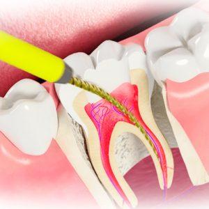 Стоматологическая Клиника Complex Dent - 20 | https://complex-dent.com.ua