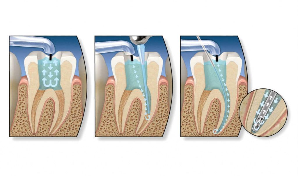 Что происходит с зубом после удаления нерва? - 3 | https://complex-dent.com.ua